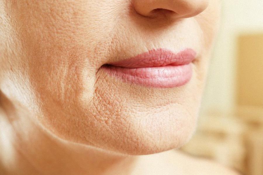 Wiotkość skóry twarzy i szyji